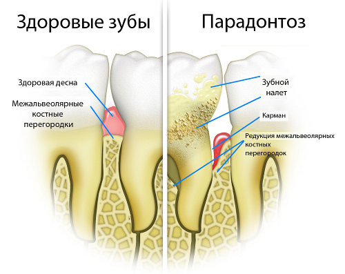 Experts will help You to restore healthy gums