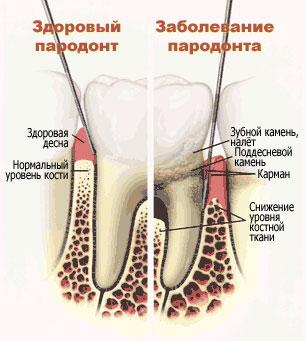 Splinting of teeth in Kiev