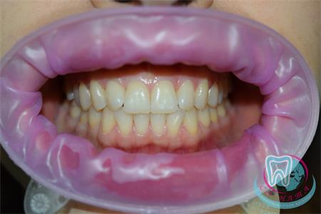 How is laser whitening performed?