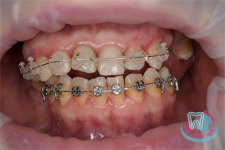 Term of wearing braces in children and adolescents